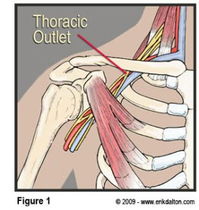 fig1thoracic